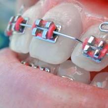 Beugels voor je tanden